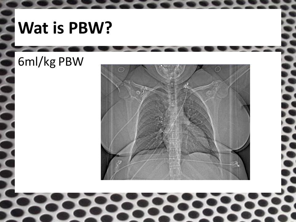 Wat is PBW 6ml/kg PBW