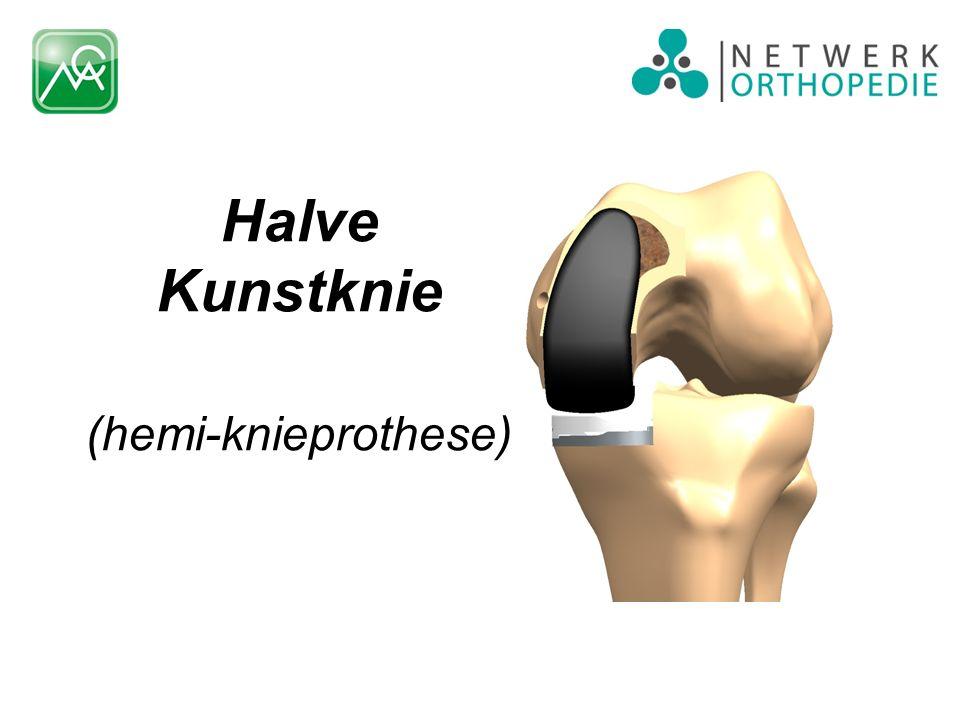 Halve Kunstknie (hemi-knieprothese)