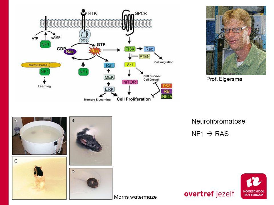 Prof. Elgersma Neurofibromatose NF1  RAS Morris watermaze