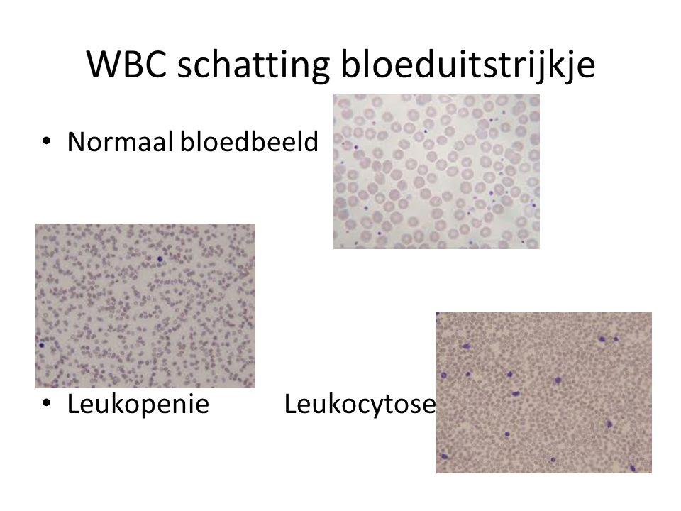 WBC schatting bloeduitstrijkje