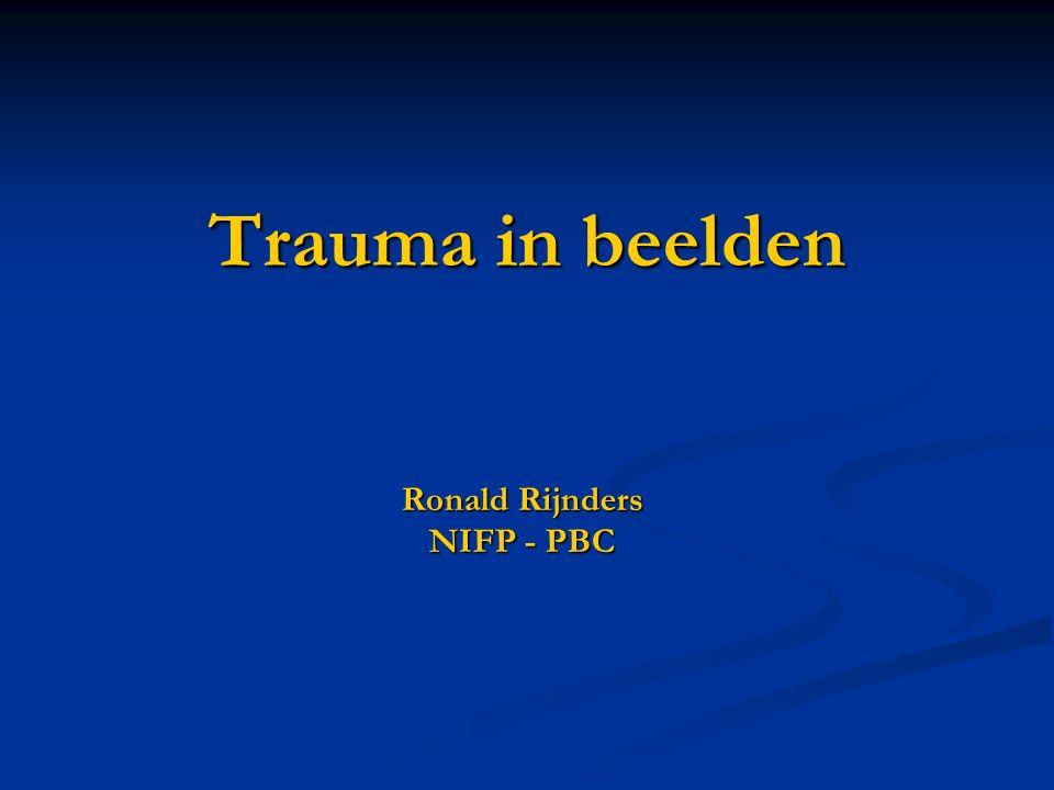 Ronald Rijnders NIFP - PBC