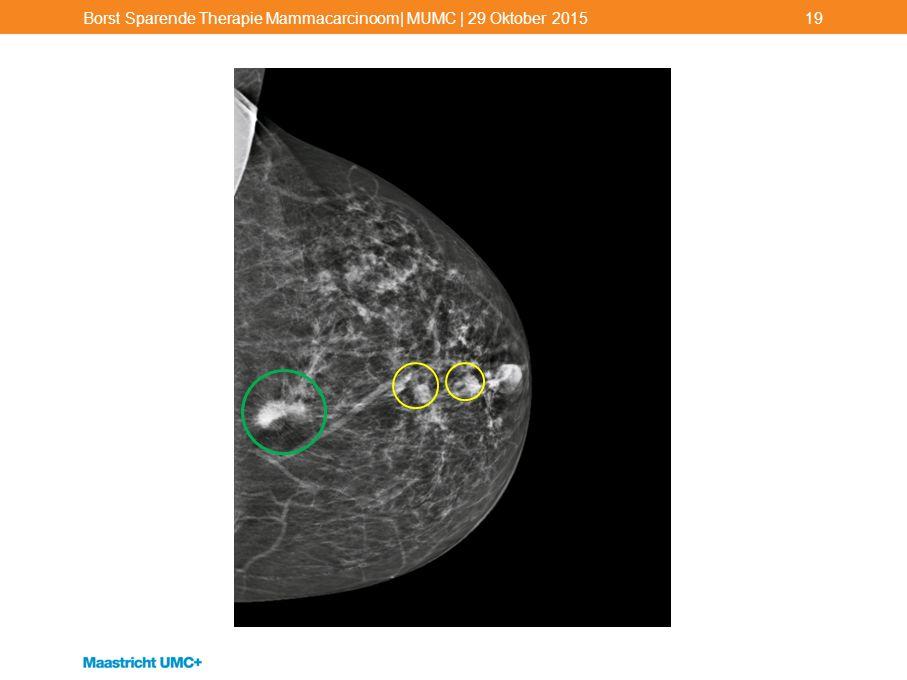 Borst Sparende Therapie Mammacarcinoom| MUMC | 29 Oktober 2015