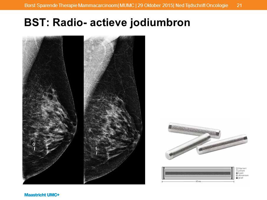 BST: Radio- actieve jodiumbron