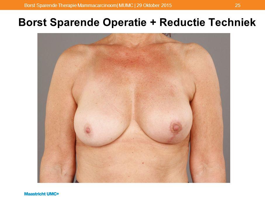 Borst Sparende Operatie + Reductie Techniek
