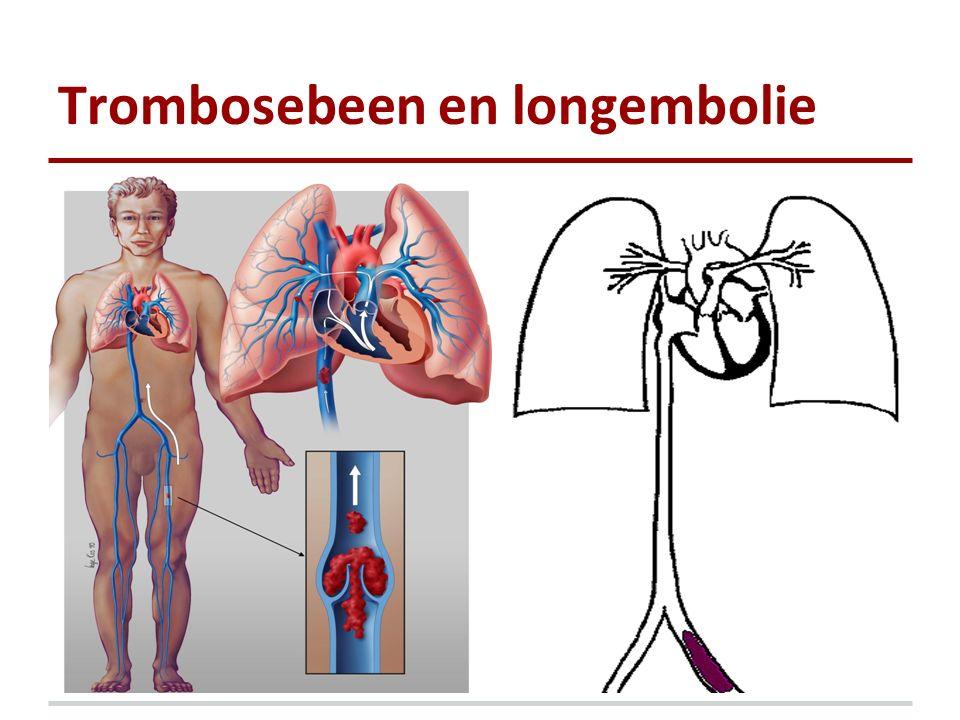 Trombosebeen en longembolie