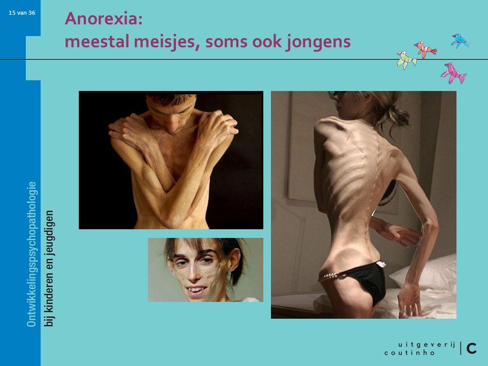 Anorexia: meestal meisjes, soms ook jongens