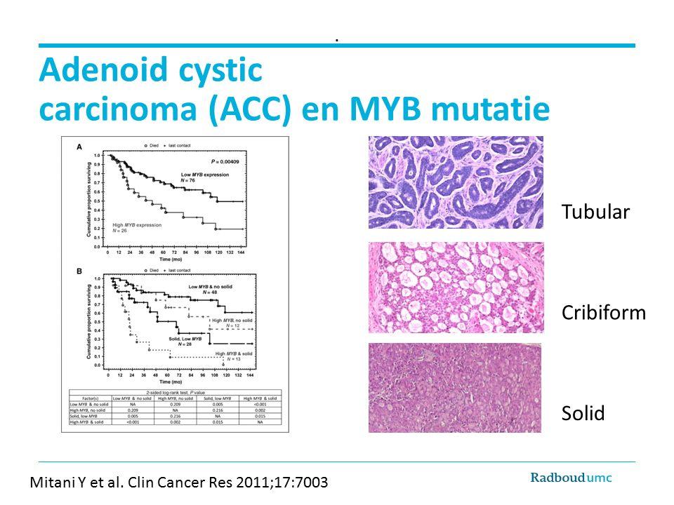 Adenoid cystic carcinoma (ACC) en MYB mutatie