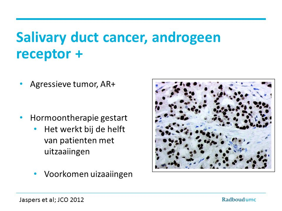 Salivary duct cancer, androgeen receptor +
