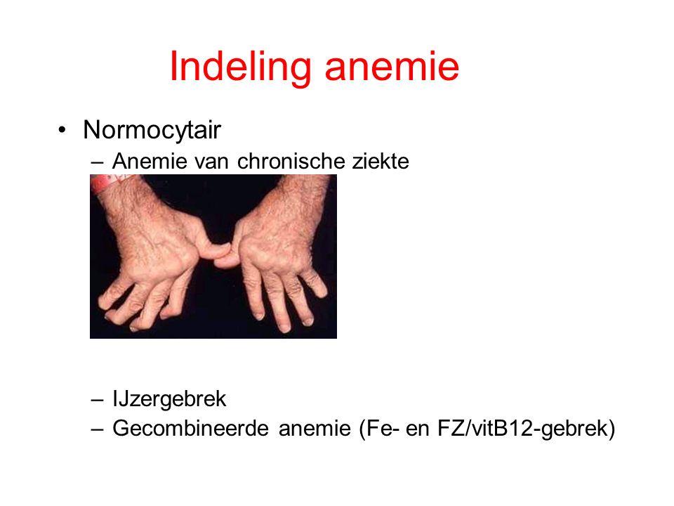 Indeling anemie Normocytair Anemie van chronische ziekte IJzergebrek