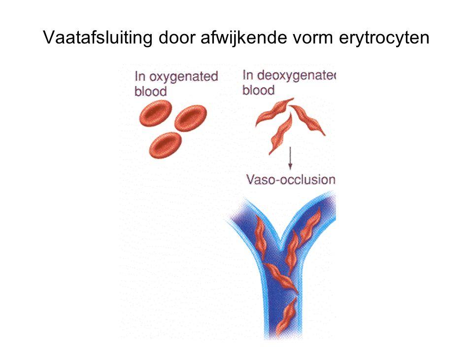 Vaatafsluiting door afwijkende vorm erytrocyten