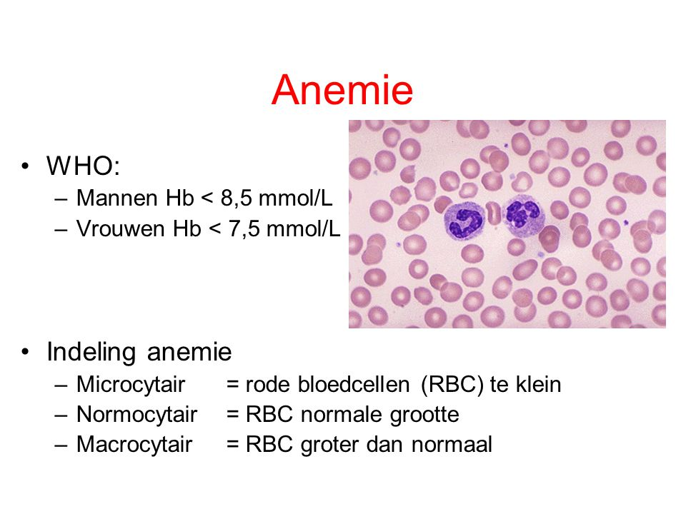 Anemie WHO: Indeling anemie Mannen Hb < 8,5 mmol/L