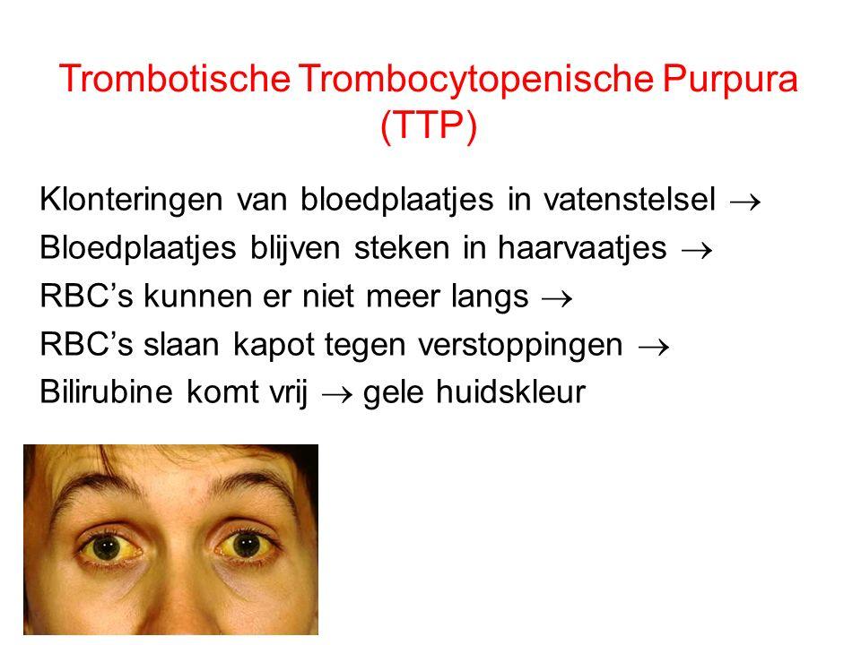 Trombotische Trombocytopenische Purpura (TTP)