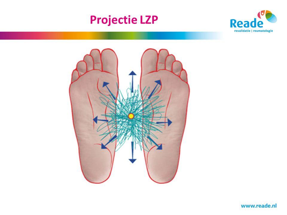 Projectie LZP