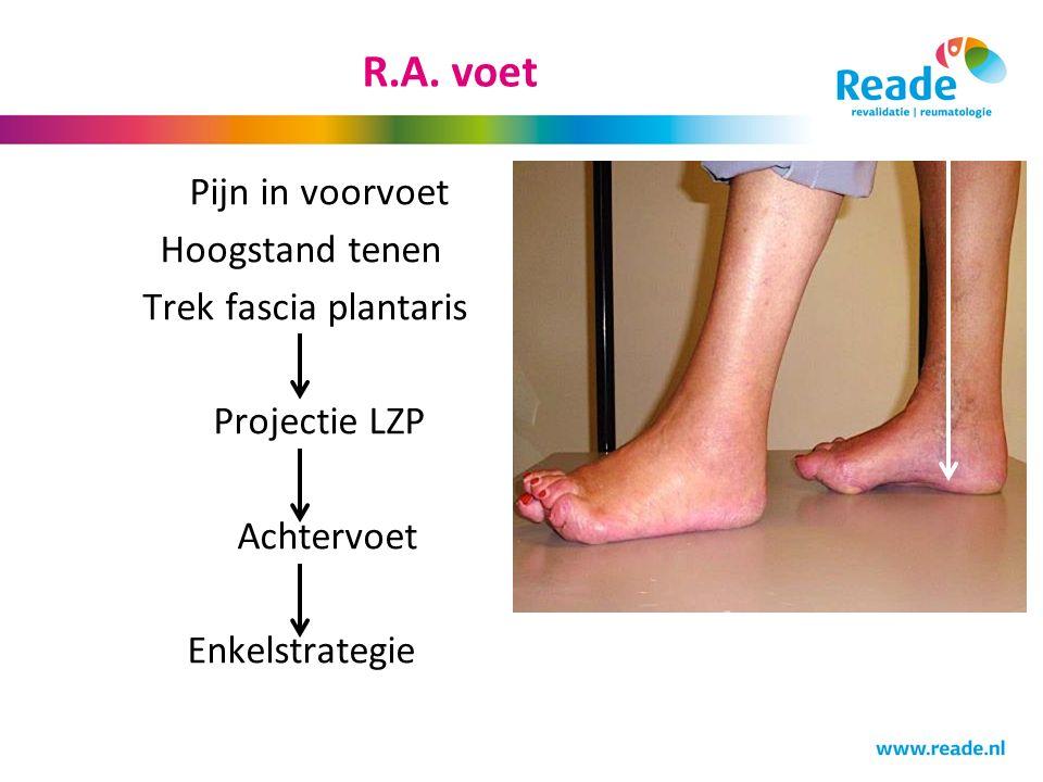 R.A. voet Pijn in voorvoet Hoogstand tenen Trek fascia plantaris