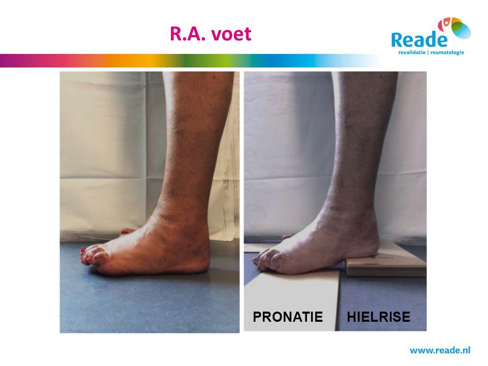 R.A. voet PRONATIE HIELRISE