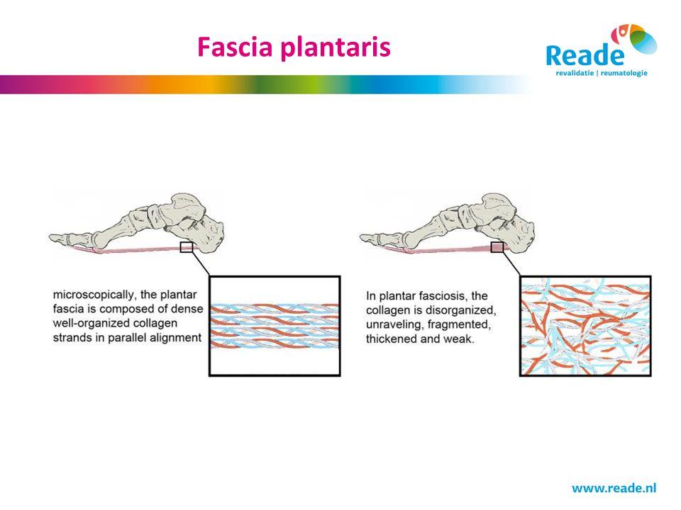 Fascia plantaris