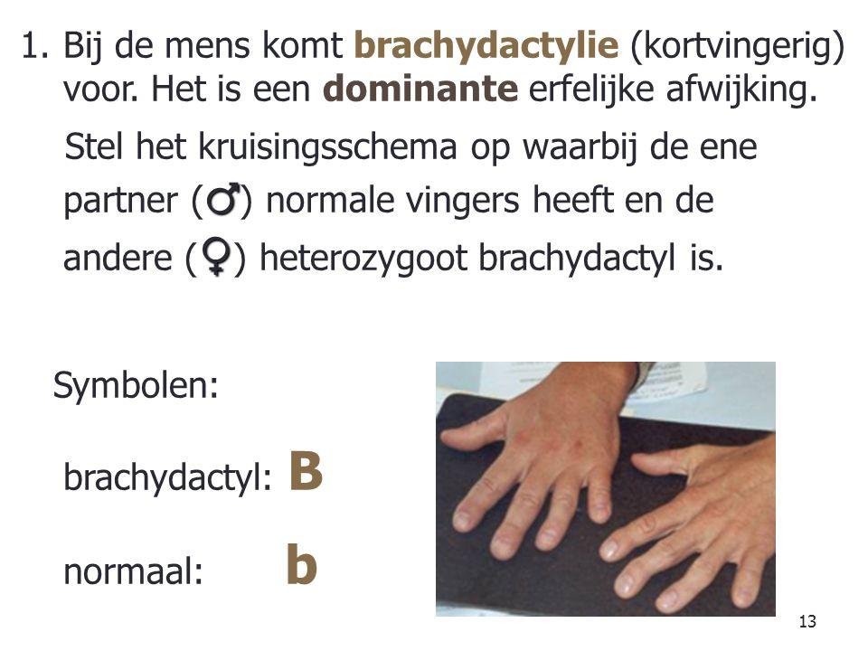 Bij de mens komt brachydactylie (kortvingerig) voor