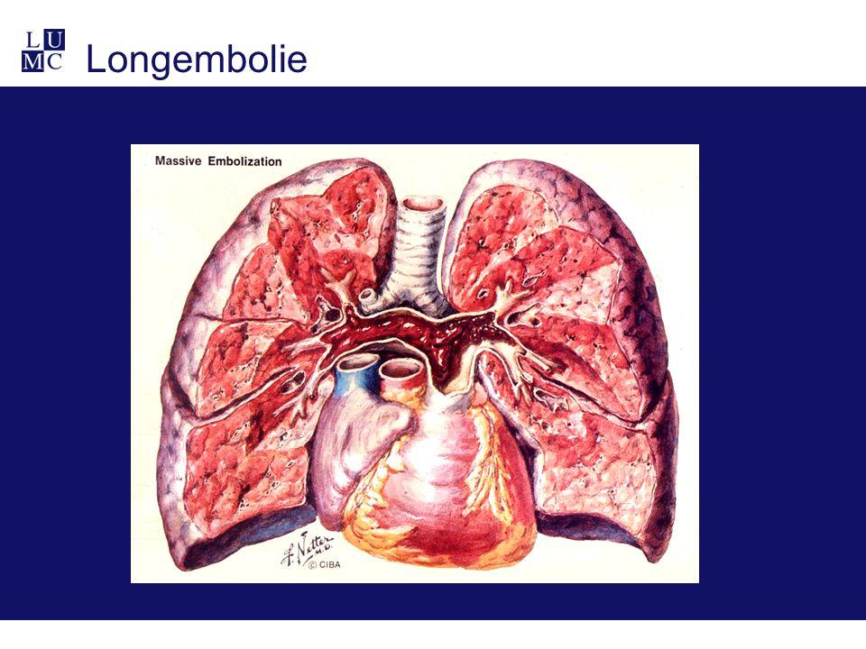 Longembolie