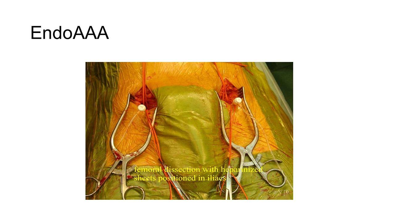 EndoAAA Wat is dit Eind jaren 90 is deze techniek opgekomen en is heden ten dage common practice