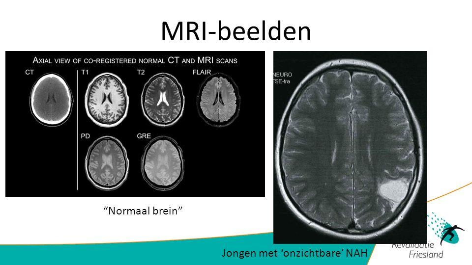 MRI-beelden Normaal brein Jongen met 'onzichtbare' NAH
