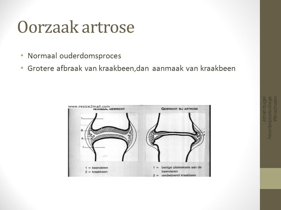 Oorzaak artrose Normaal ouderdomsproces