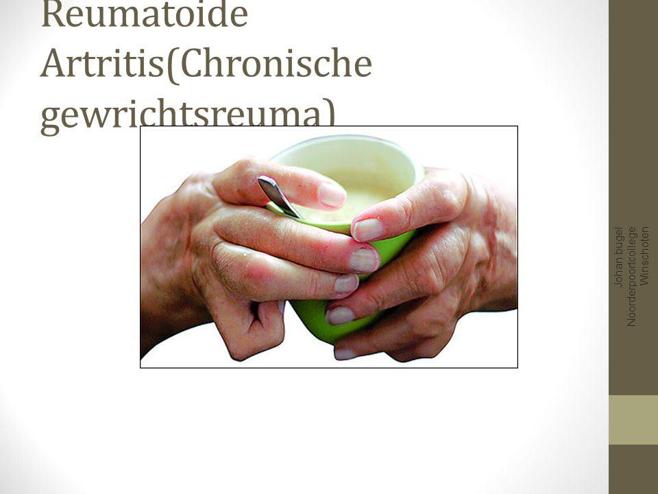 Reumatoide Artritis(Chronische gewrichtsreuma)