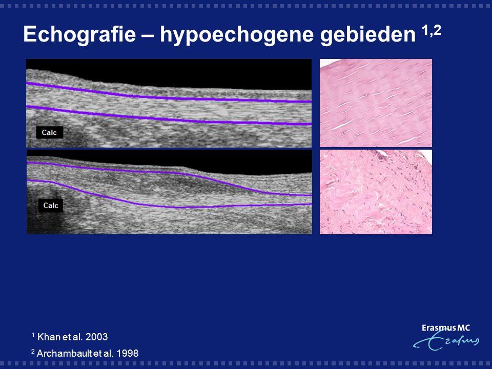 Echografie – hypoechogene gebieden 1,2