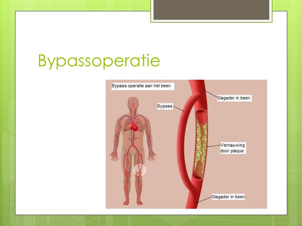 Bypassoperatie