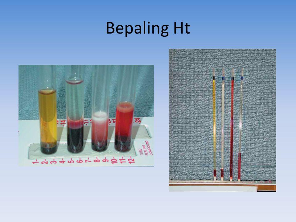 Bepaling Ht Je kijkt niet alleen naar de verhouding, maar ook naar de kleur van het plasma erboven.