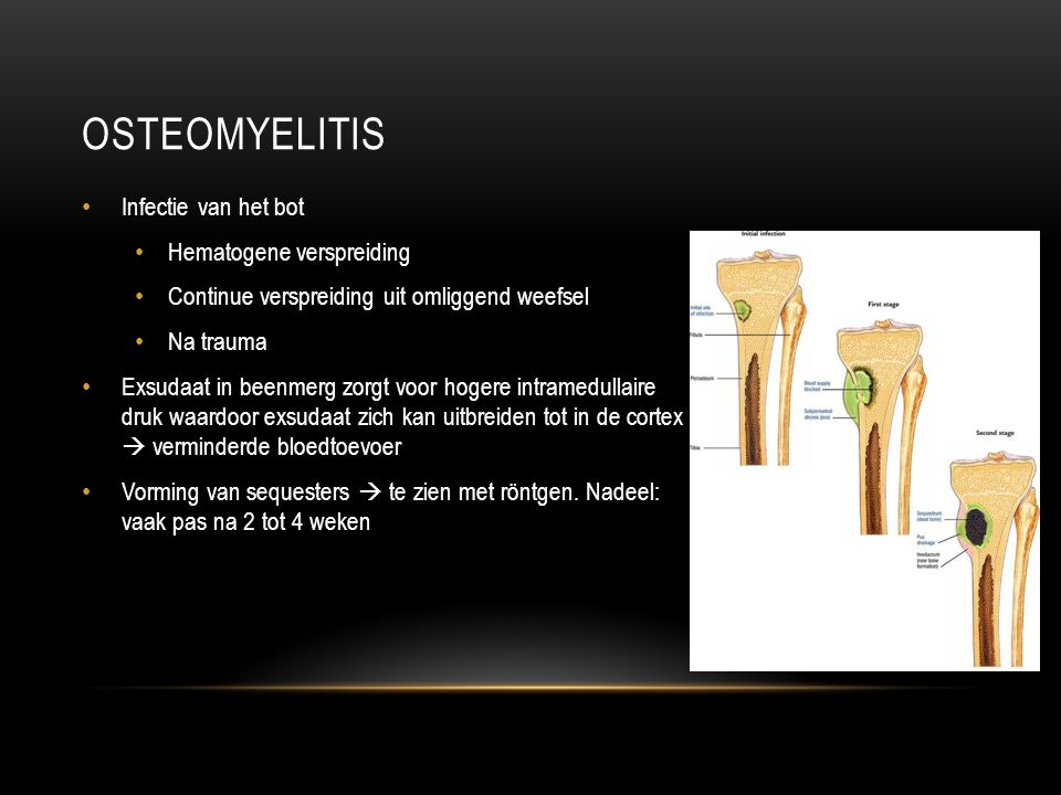 Osteomyelitis Infectie van het bot Hematogene verspreiding