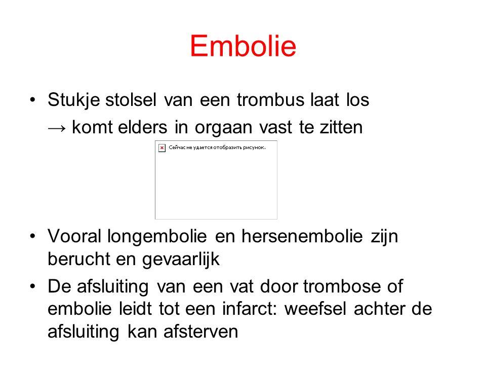 Embolie Stukje stolsel van een trombus laat los
