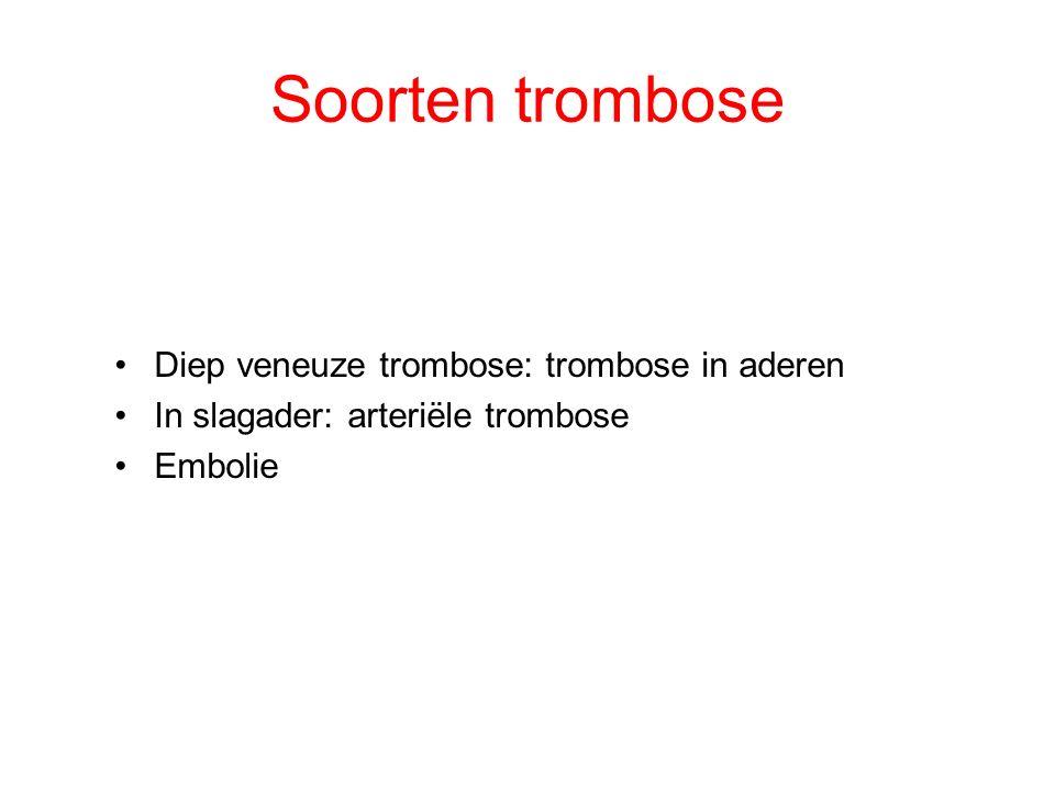 Soorten trombose Diep veneuze trombose: trombose in aderen