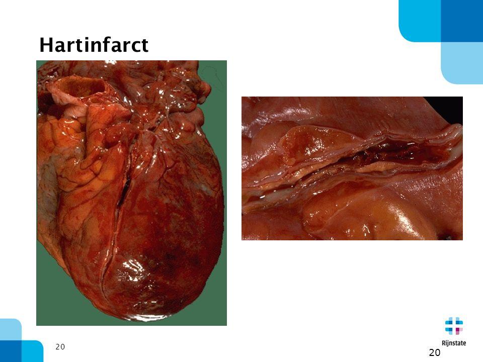 Hartinfarct 20