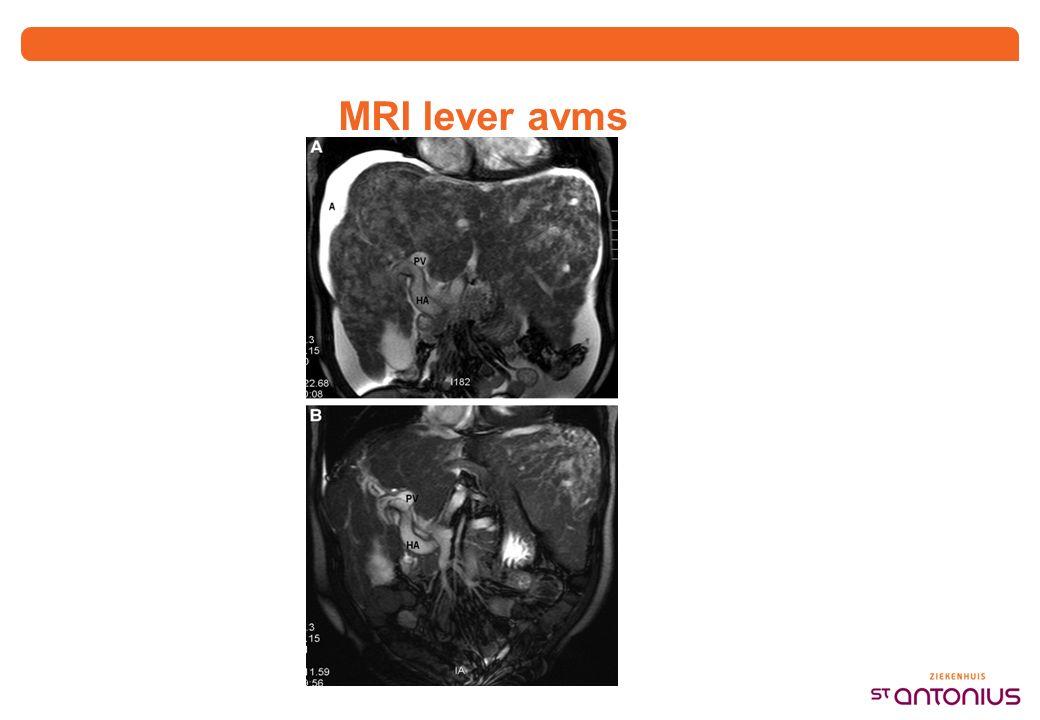Hoe vaak komt het voor Met echo lever 32-72% Met CT 67-78%
