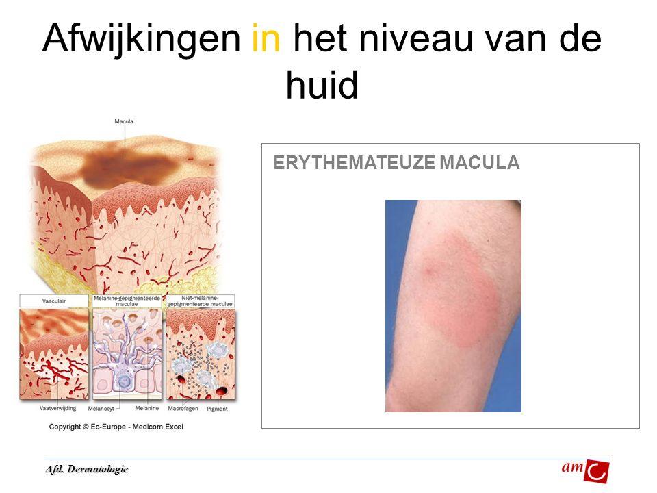 Afwijkingen in het niveau van de huid