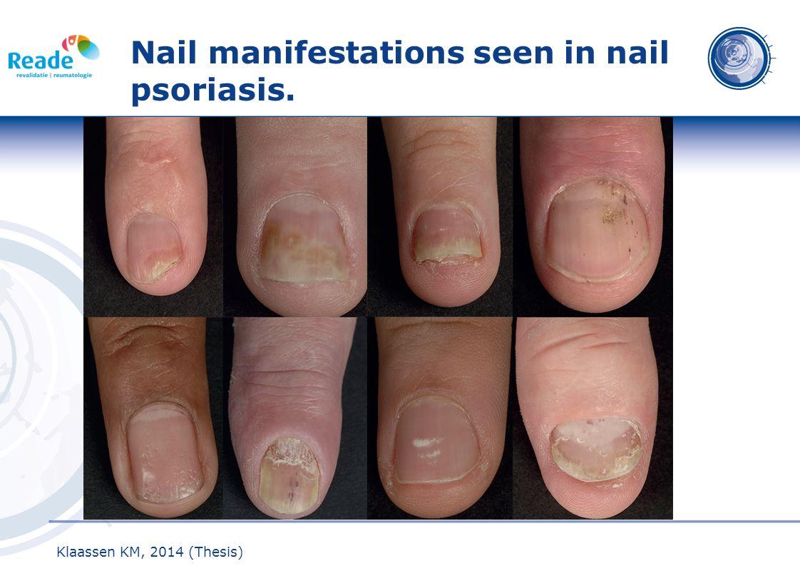 Nail manifestations seen in nail psoriasis.