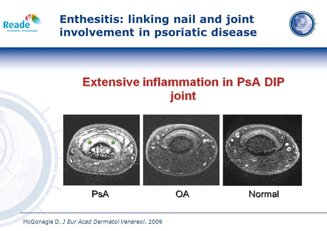 Enthesitis: linking nail and joint involvement in psoriatic disease