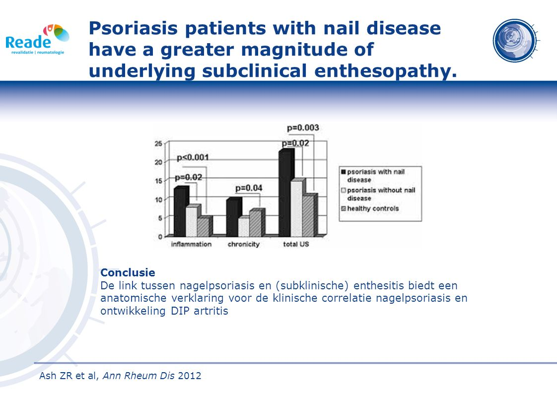 Psoriasis patients with nail disease have a greater magnitude of underlying subclinical enthesopathy.