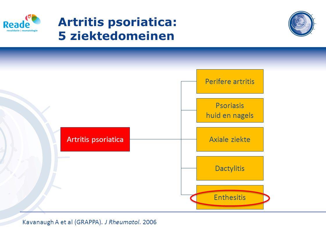Artritis psoriatica: 5 ziektedomeinen
