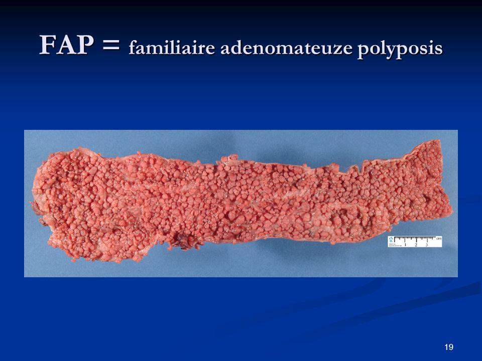 FAP = familiaire adenomateuze polyposis