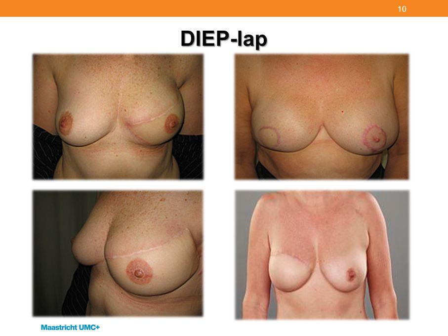 DIEP-lap