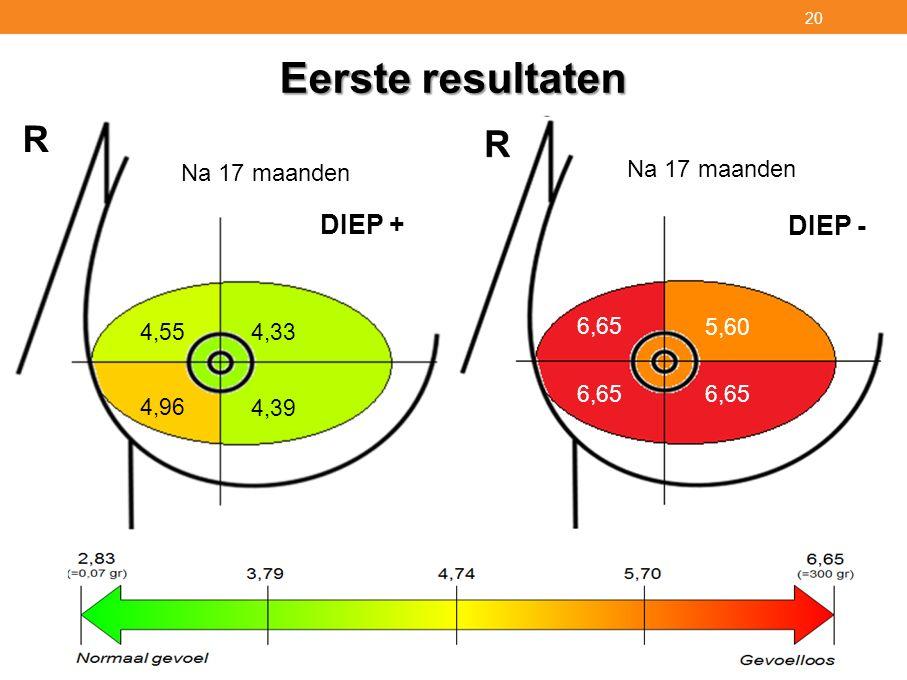 Eerste resultaten R DIEP + DIEP - Na 17 maanden Na 4 maanden