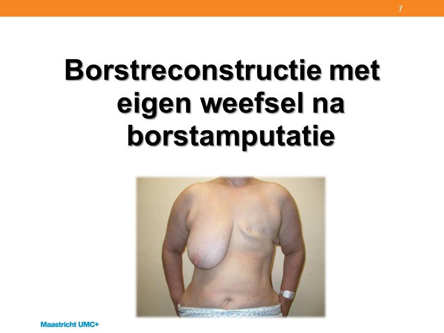 Borstreconstructie met eigen weefsel na borstamputatie