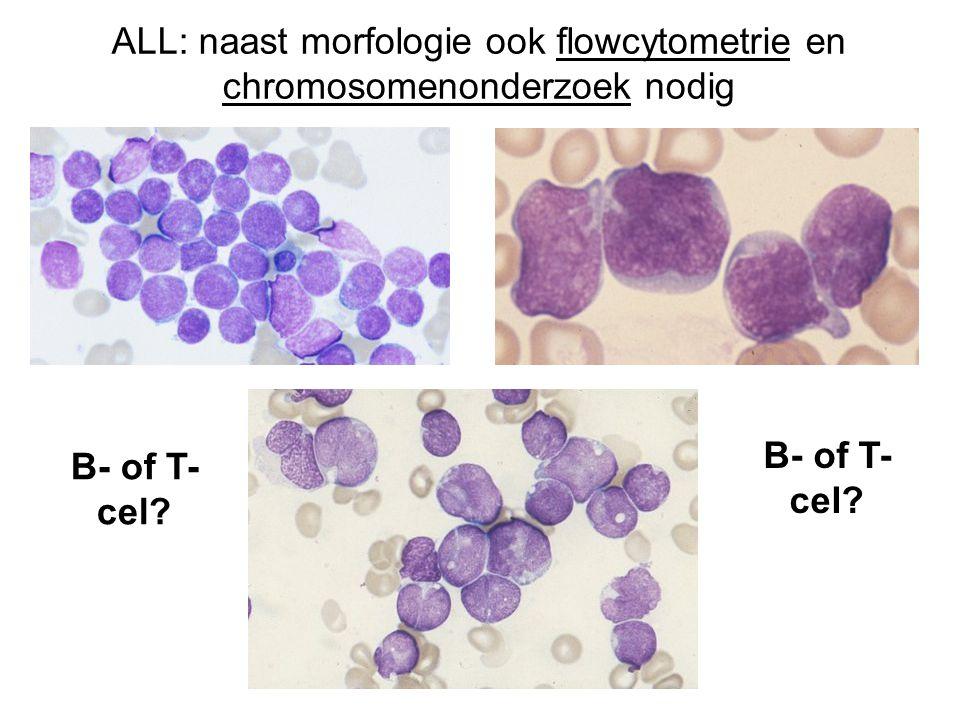 ALL: naast morfologie ook flowcytometrie en chromosomenonderzoek nodig