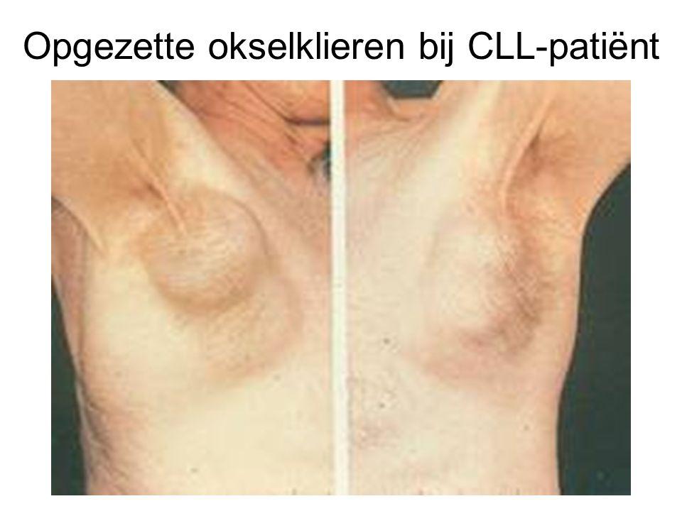 Opgezette okselklieren bij CLL-patiënt