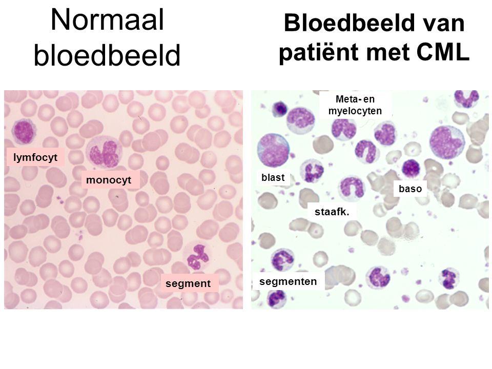 Bloedbeeld van patiënt met CML