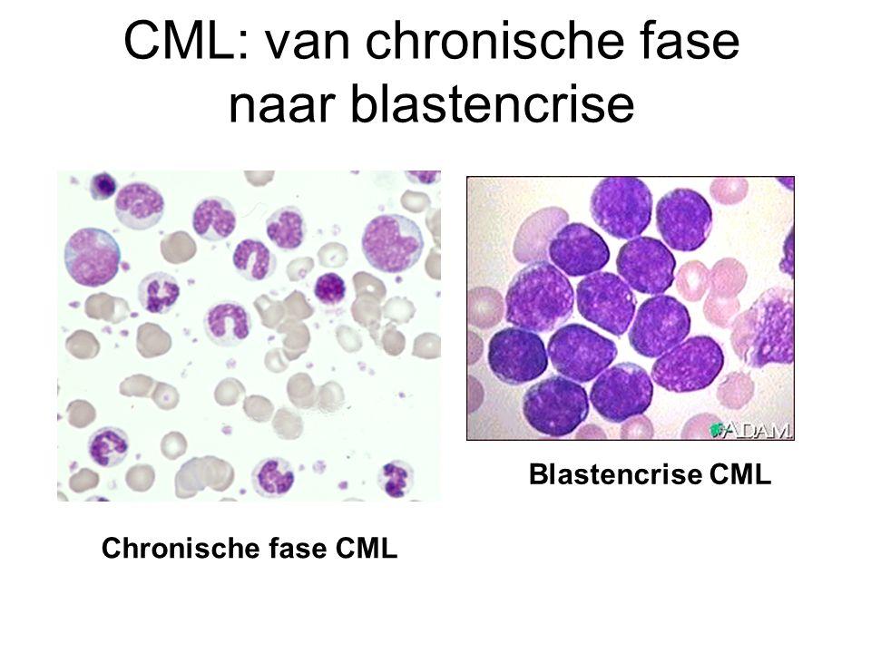 CML: van chronische fase naar blastencrise