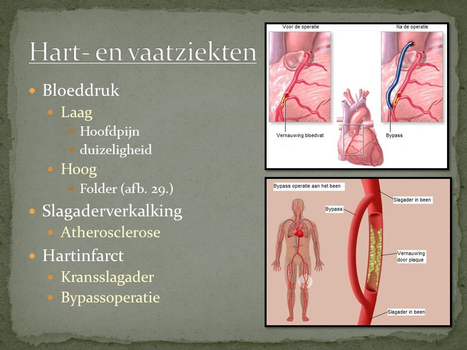 Hart- en vaatziekten Bloeddruk Slagaderverkalking Hartinfarct Laag