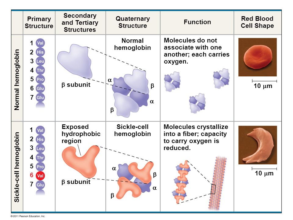 Secondary and Tertiary Structures Sickle-cell hemoglobin