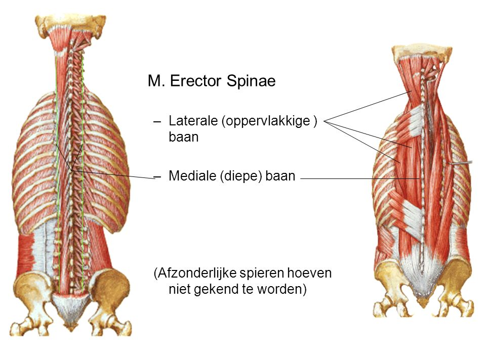 M. Erector Spinae Laterale (oppervlakkige ) baan Mediale (diepe) baan